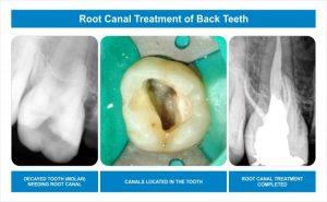 Dental Arch 02