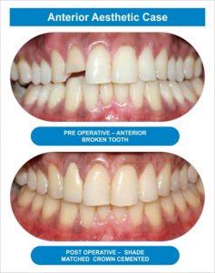 Dental Arch 03