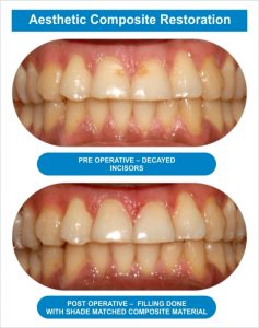 Dental Arch 04