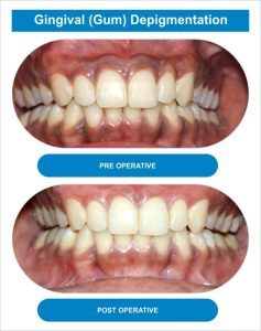 Dental Arch 08