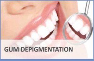 Gum Depigmentation