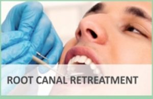 Root Canal Re-treatment