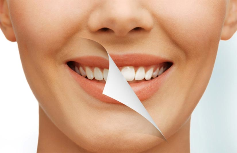 Cosmetic Dentistry, Cosmetic Dental Clinic | The Dental Arch